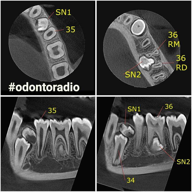 Presença de dois dentes supranumerários no lado esquerdo da mandíbula, o primeiro promovendo a inclusão do dente 34 e o segundo localizado entre as raízes do dente 36. Imagens Odontoradio. #radiologia #odontoradio #odontologia #xray #tomografia #dentist #dentistry #oralradiology #ctbmf #radiologiaodontologica #tomography #radiology #odontoiatria #implantodontia #imaging #conebeam #lajeado #teutonia #implantes #orto #endodontia