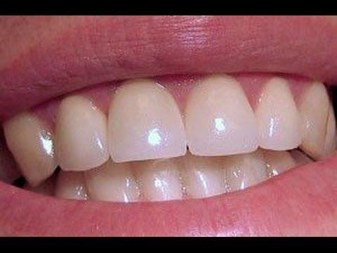 Растим новые зубы. Невероятно!!!