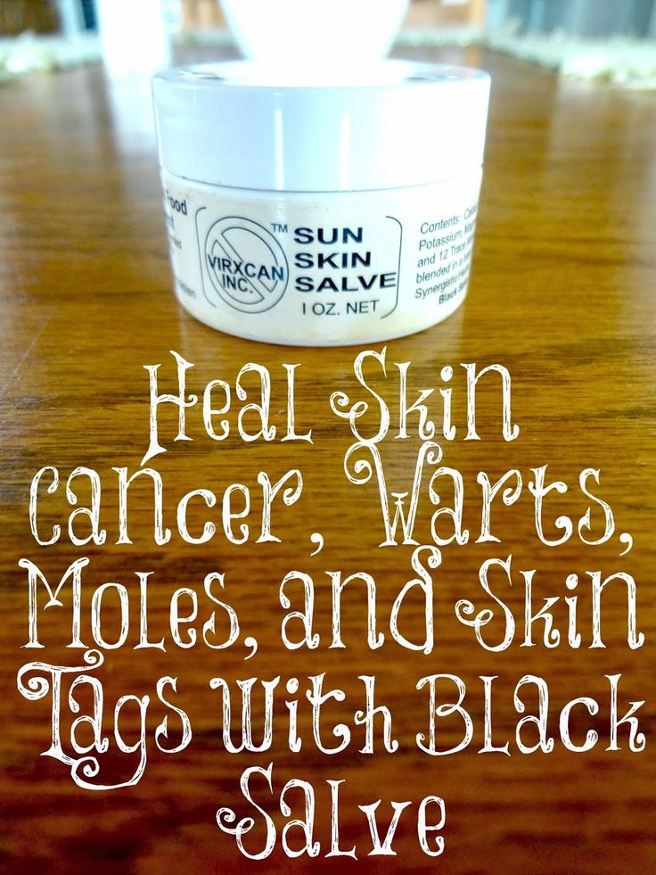 Would you like a cheap, effective and simple way to heal skin cancer, warts, moles, and skin tags without doctor appointments and drugs? This amazing product has done all of those things for us and we love it!