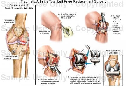 Total Left Knee Replacement Surgery Is The Next Thing On My Agenda