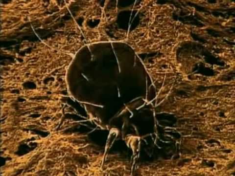 Best 25 Dust Mites Ideas On Pinterest Keep Spiders Away