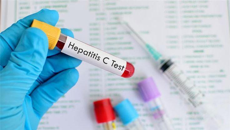 A hepatitis C furcsa betegség: gyakran nincsen semmilyen látható tünete, mégis krónikus májgyulladást okozhat. Hogyan kaphatod el? Mire kell vigyáznod?