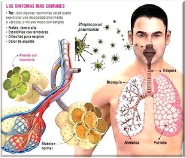 bronconeumonia fisiopatologia - Buscar con Google