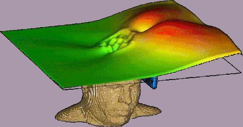 Horizontaler Schnitt mit der elektromagnetischen Leistungsdichte beim…