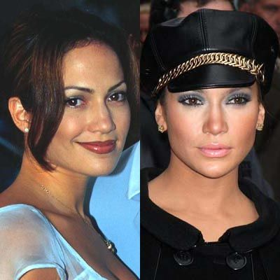 Jennifer Lopez Nose Job Before And After | Jennifer Lopez Nose Job | How Much is a Nose Job?