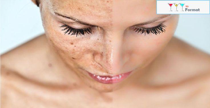 Эта маска магически удаляет пятна, шрамы, угревую сыпь и морщины!Средства для борьбы с морщинами и преждевременным старением кожи лица и шеиhttp://prini65.com/mmsredstva-dlya-borby-s-morshhinami-i-prezhdevremennym-stareniem-kozhi-lica-i-shei/