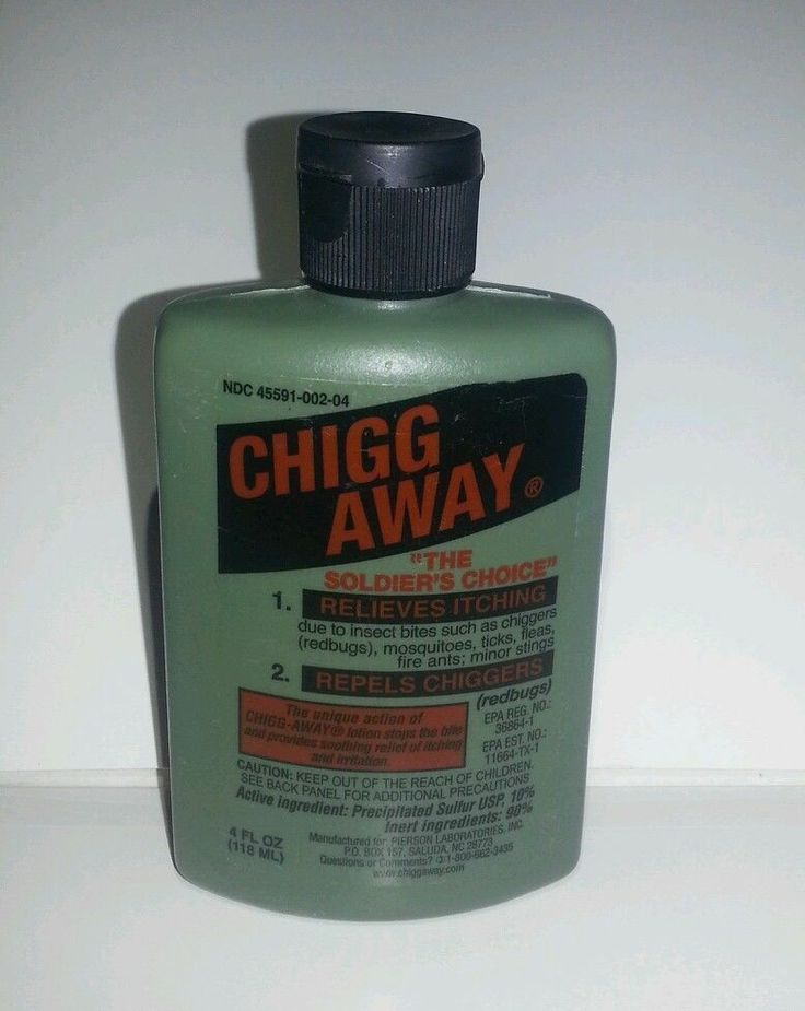 Chigg Away Insect Repellent Redbugs Chigger Repellent and Itch Relief 4 oz