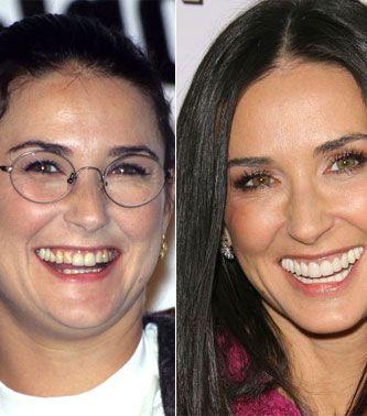 Before & after - Sådan så stjernerne ud FØR de fik nye tænder! #makeover #styling #celebs #fashion #style #demimoore      http://www.q.dk/Skon-fra-top-til-ta/Snyd-dig-smuk/2012-50-Stjernerne-foer-de-fik-nye-taender.aspx