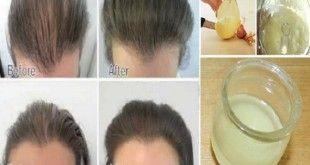 Onion-juice-for-hair-growth
