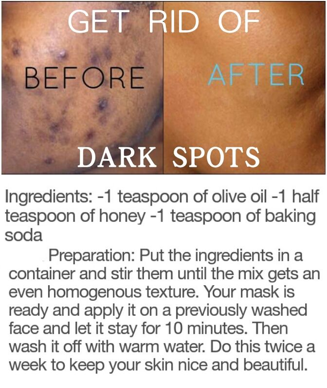 DIY Beauty hacks to get rid of dark spots