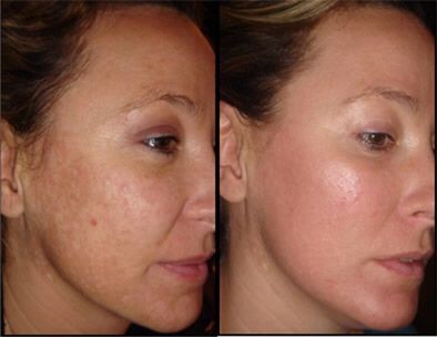 This patient has had a treatment with a fractional co2 laser. This has highly improved her pigmentation concern, resulting in her having and even colour across the face as well and improved the texture of the skin.