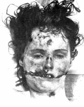Elizabeth Short, more famously known as the Black Dahlia was believed to be given a Glasgow smile during her murder, as when police recovered her body, her mouth was slit from side to side towards her ears.