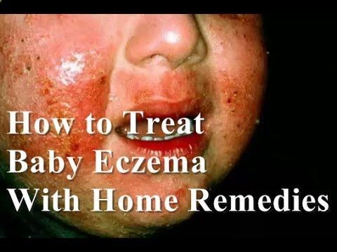 How to Treat Eczema on Face : How to Treat Baby Eczema with Home Remedies - CLICK HERE for the Eczema Cure! #eczema #eczemacure #healthguides How to Treat Eczema on Face : How to Treat Baby Eczema with Home Remedies Learn How to get rid of eczema fast at home naturally. The eczema is an acute or chronic inflammation of the skin that generates symptoms such as... - #Eczema