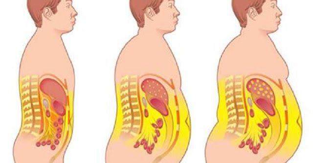 Diga adeus à gordura abdominal e desintoxique o corpo com esta receita   Cura pela Natureza.com.br