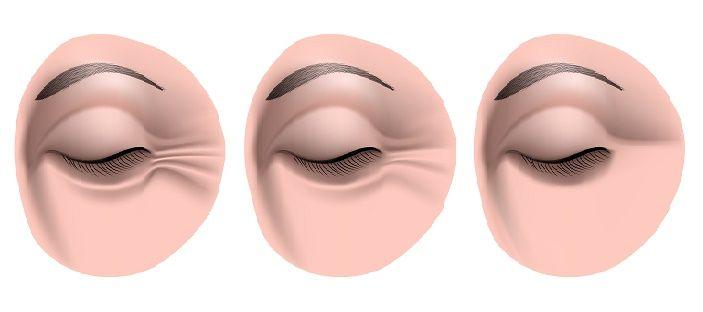 Toma nota porque uno de ellos es la siguiente receta que sólo lleva tres ingredientes que son lo máximo para reducir las arrugas de los ojos en gran manera.