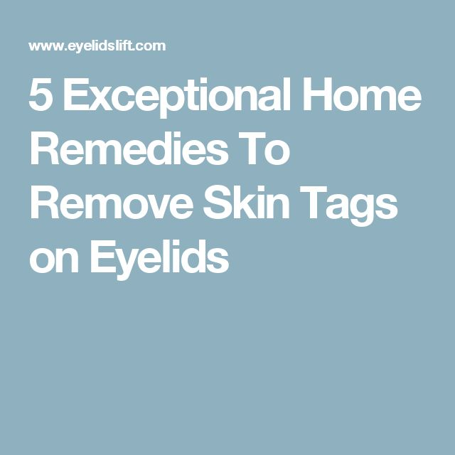 how to get rid of skin tags on your eyelid
