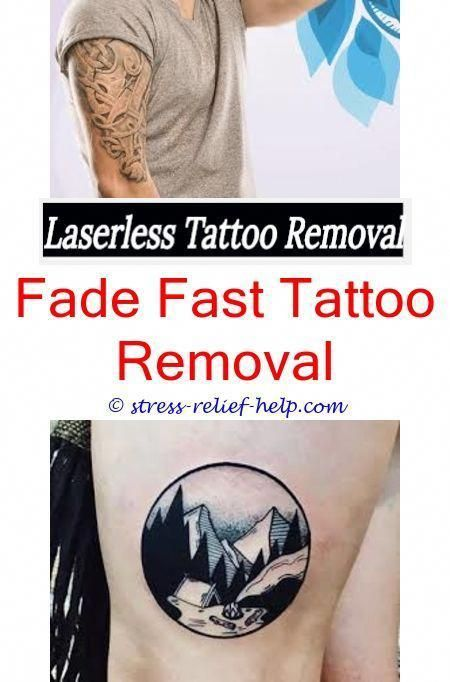 Picosure Laser Tattoo Removal California Where Should I Get My