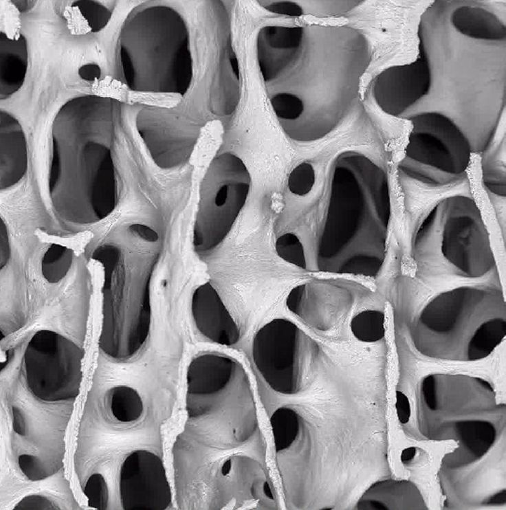 Human bone under Scanning Electron Microscope