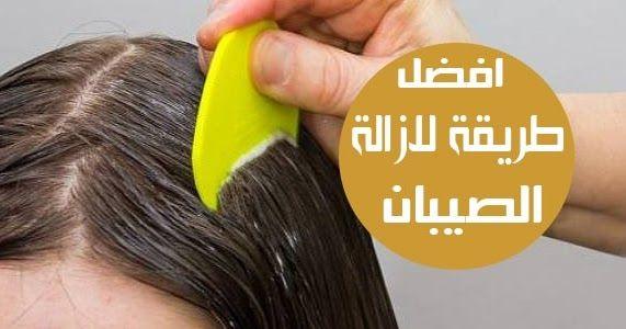 افضل طريقه لازالة الصيبان من الشعر يعتبر قمل الرأس من الأمراض الشائعة ويظهر في الغالب عند الأطفال إن القمل معدي جدا حيث أنه يمك Lice Removal Hair How To Remove