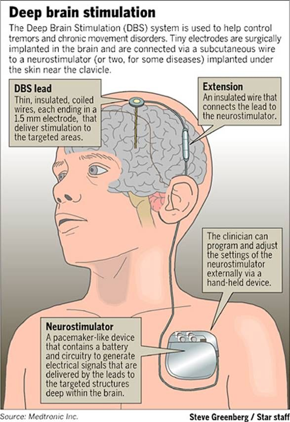 Bhabha Atomic Research Centre and Sree Chitra Tirunal Institute for Medical Sciences & Technology (SCTIMST), Thiruvananthapuram have agreed to join hands to develop 'Deep Brain Stimulator' (DBS). What is DBS ? DBS involves implanting electrodes within certain areas of brain and the regular electrical pulses generated by a pacemaker-like device placed under the skin in … #dbs #deepbrainstimulator