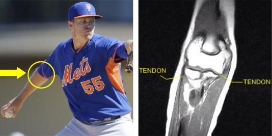 #NoahSyndergaard was evaluated by #NYMets medical staff after straining his flexor-pronator in his right elbow. The top pitching prospect has been placed on the Triple-A Las Vegas 15-day DL, but could still make his major league debut later this season. Take a look at more baseball #injuries at http://insideinjuries.com/category/baseball/. #injuredplayer