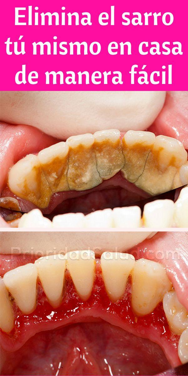 Elimina el sarro de tus dientes tú mismo en casa, de manera fácil y natural, sin gastar dinero en el dentista, con este truco casero.