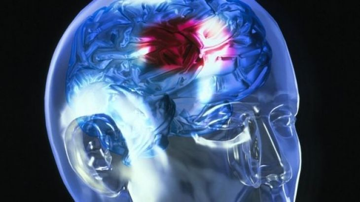 Accidentul vascular cerebral (AVC) este o afectiune grava, care apare atunci cand un vas care alimenteaza creierul cu sange, se sparge sau este blocat de un cheag. In consecinta, partea corpului controlata de zona afectata a creierului nu mai poate functiona adecvat.  Daca, de exemplu, accidentul