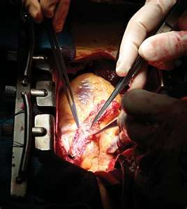 Part 1: What to Expect After Open Heart Surgery