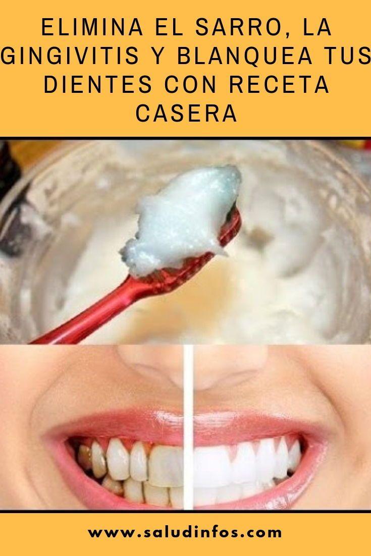 recetas naturales soldier aclarar los dientes