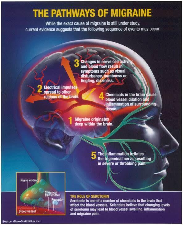 Hemiplegic Migraine Natural Treatment