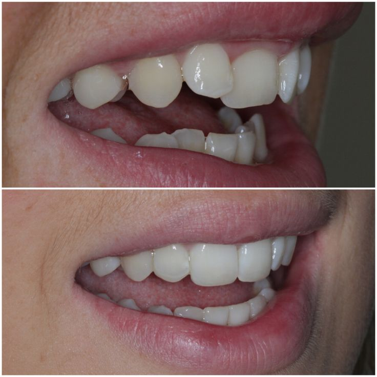 Austell Dental Center P C: Removable Orthodontic Appliance, 6 Weeks Of Treatment With