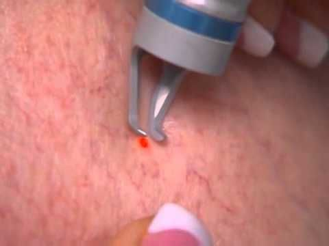 Spider Vein Removal & Treatment Procedure | VeinInnovations - YouTube