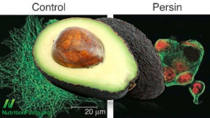 Are avocados good for you?