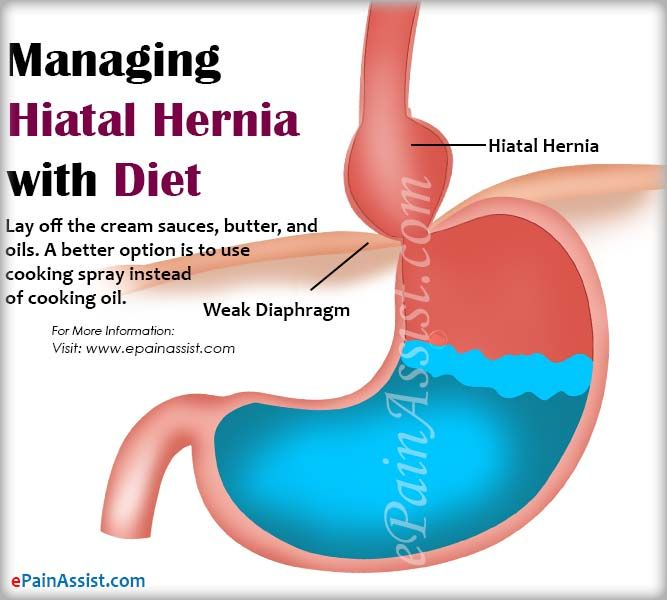 Managing Hiatal Hernia With Diet Lifestyle Changes Treatment