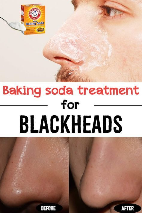 Baking soda treatment for blackheads