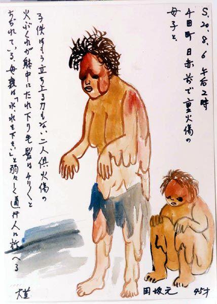 Tasaka Hajime-15- una madre pide agua desesperadamente para su hijo, ambos quemados y con la piel colgando