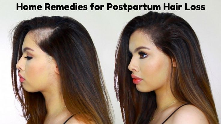 Here are some best ways that help you a lot in dealing with postpartum hair loss.