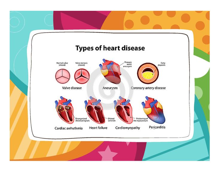 CVD - types of heart disease