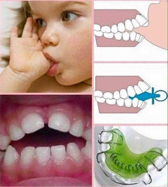 Dentaltown - Children who suck their thumb, fingers, binky, or pacifier can develop problems with the roof of their mouth and how their teeth come together. Most children stop between ages 2 and 4. Thumb sucking should stop before the child's permanent teeth start coming in.
