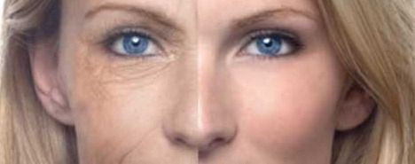 Say Goodbye to Wrinkles and Sagging Facial Skin After Washing it With This Powerful Mixture! – Natural Healing