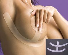 Biodermis/Epi-Derm Breast Surgery Scar Healing & Reduction Silicone Sheet Anchors (Pair) (Self-Adhesive)