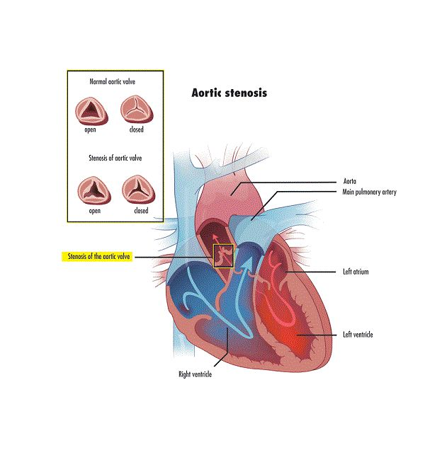 Aortic Stenosis In Children: 1000+ Ideas About Human Heart Diagram On Pinterest