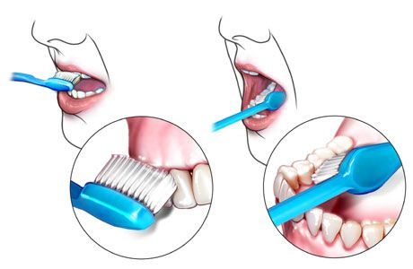 there are 22 steps in brushing your teeth, forgetting a step messes with the process. Bad teeth causes infections and bad behaviors (from pain). Make sure your parents caregivers are taking good care of the teeth! (Family or Not). it is an easy activity to quit doing.