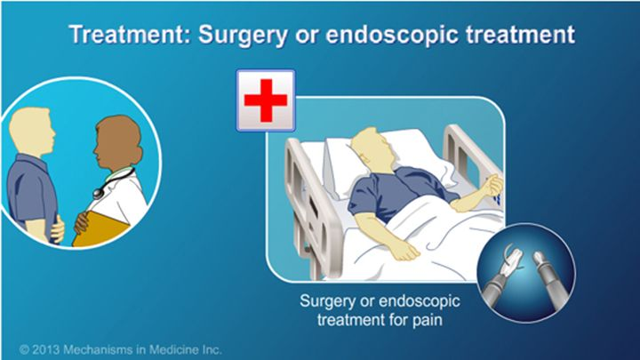 … or that surgery or endoscopic procedures may be required.  slide show: management and treatment of chronic pancreatitis. this slide show describes the goals of management and treatment of chronic pancreatitis.
