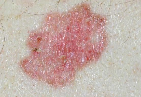 """Basalioma: il tumore """"buono"""" che può diventare cattivo - http://www.wdonna.it/basalioma-tumore/60000?utm_source=PN&utm_medium=Gossip&utm_campaign=60000"""