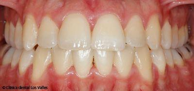 ortodoncia-damon-guadalajara