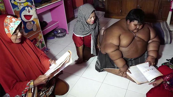 """Madre del menor indonesio se lamenta: """"Mi hijo está creciendo a un ritmo rápido y estoy preocupada por su salud"""". Arya Permana, e..."""