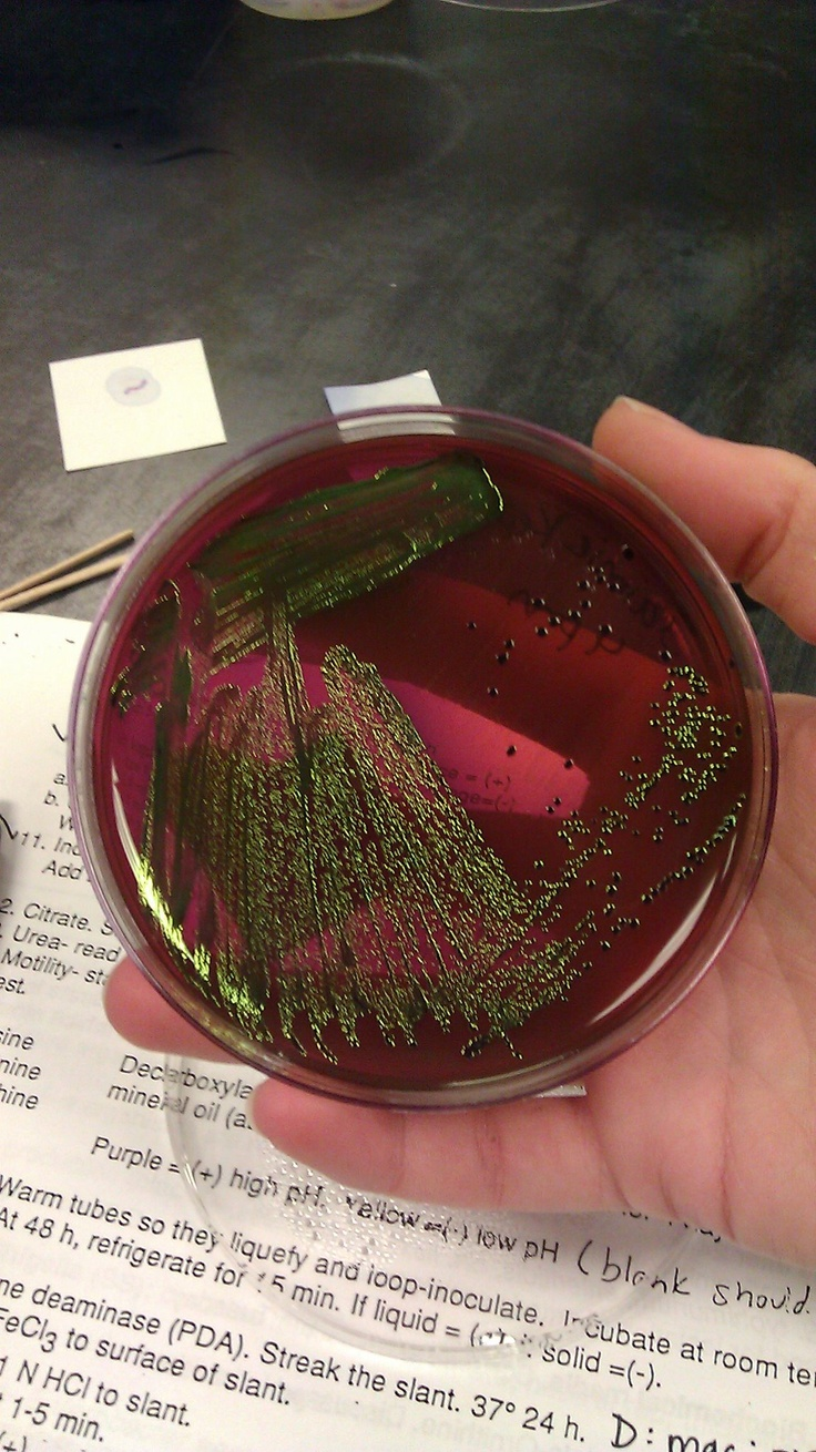 E. coli on EMB media - E. coli will take up the eosin and methylene blue dyes in the media, resulting in a metallic green-black color.