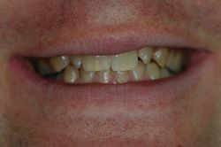 Cosmetic Dental Surgery Latest online