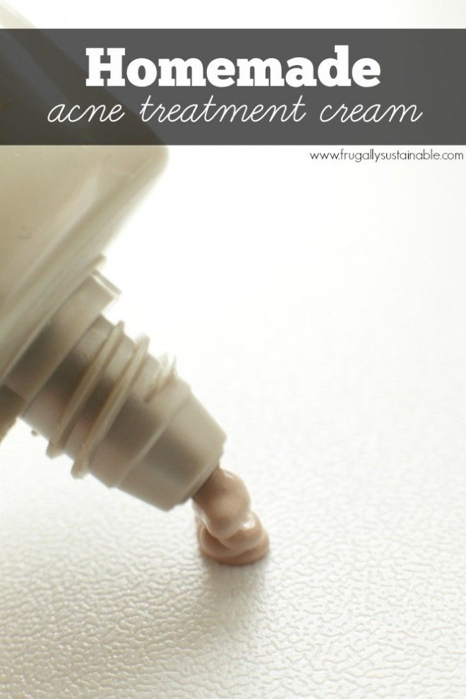 How to Make Your Own Acne Spot Treatment Cream :: Homemade, Toxin Free, Chemical Free Zit Cream